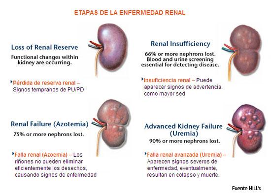 cuales son los sintomas del riñon malo